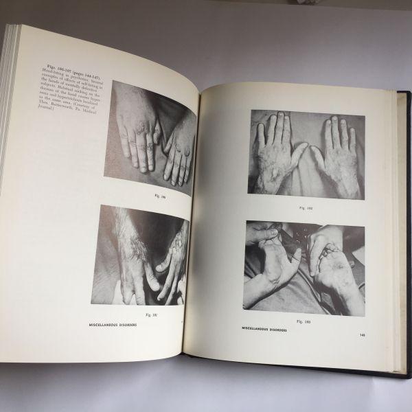 The HAND as mirror of systemic disease, J. Berry. Fotografías de manos